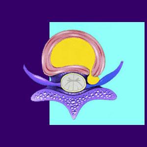 Chiropractic for Herniated Discs