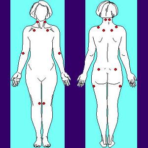 Relief From Fibromyalgia