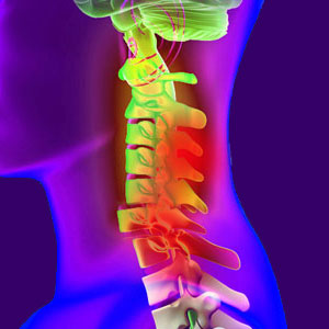 Spinal Cord Hemorrhage
