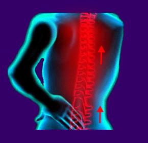 Spinal Shock When Walking